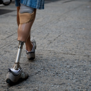 Person walking with a right prosthetic leg