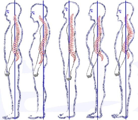 Diagram showing poor posture