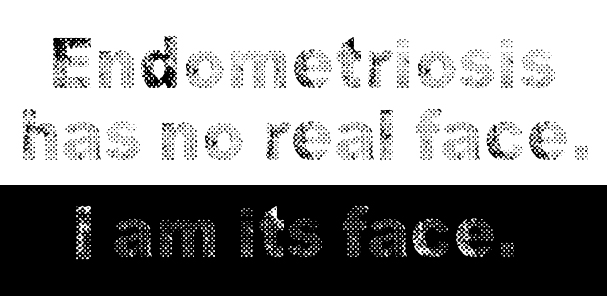 Text that reads Endometriosis has no real face. I am its face.