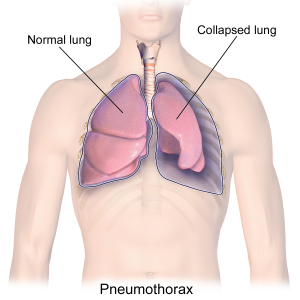 Graphic depicting a pneumothorax (collapsed lung)
