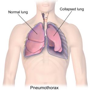 Blausen_0742_Pneumothorax