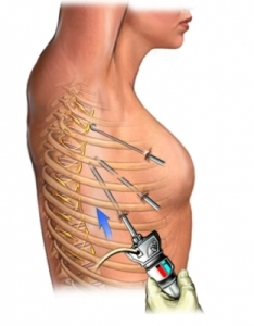 Thoracic_Surgery-2