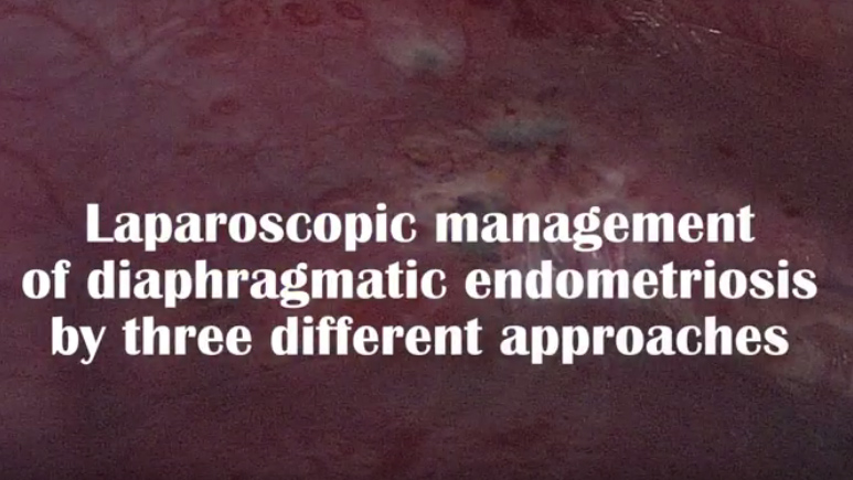 Text that reads Laparoscopic management of diaphragmatic endometriosis by three different approaches