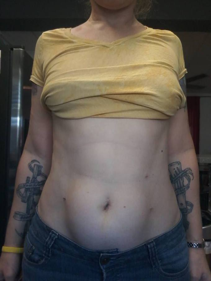 Photo of bare abdomen after surgery