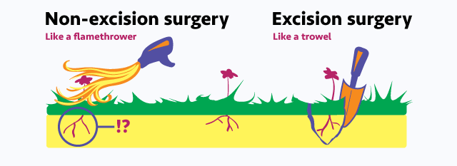 graphic depicting difference between ablation and excision (burning versus cutting)