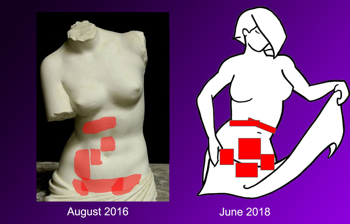A diagram comparing pain from August 2016 to June 2018