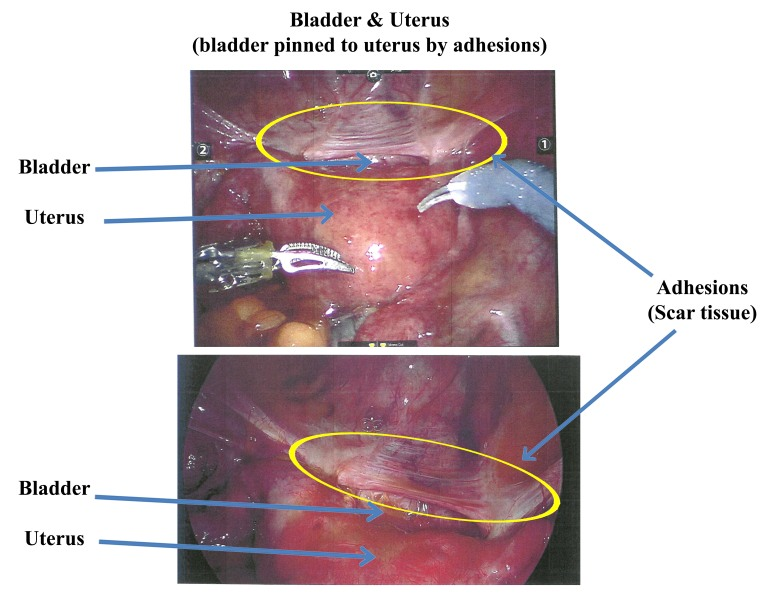 Lisa's surgical photographs of adhesions on the bladder