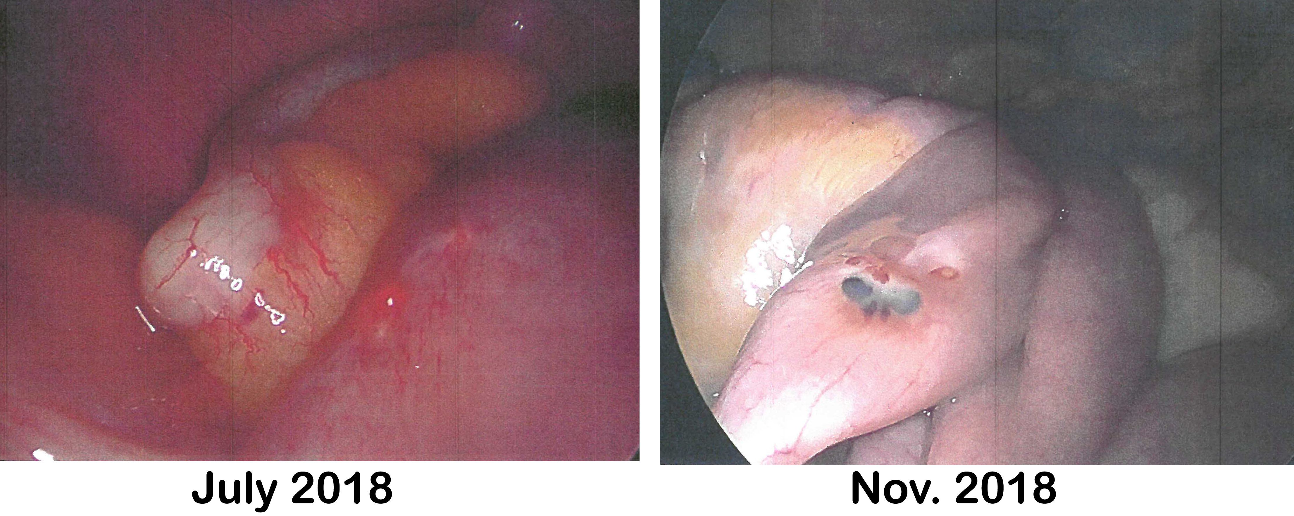 Comparison photos of July 2018 and November 2018 Endo lesions on bowel