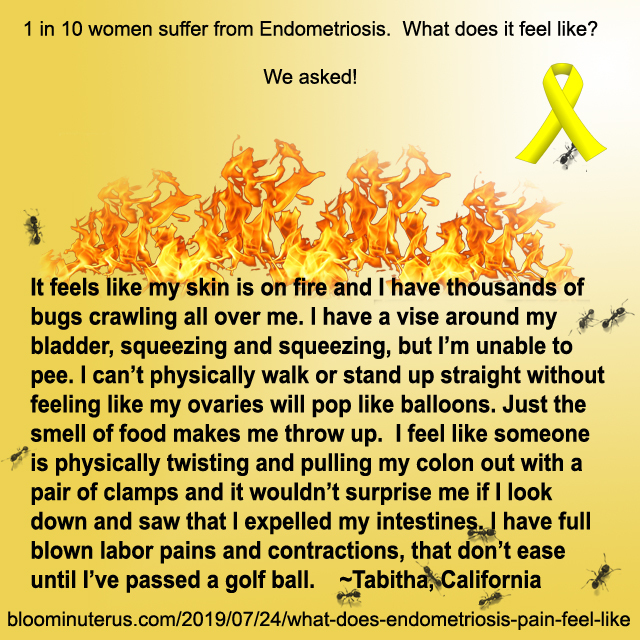 It feels like my skin is on fire and I have thousands of bugs crawling all over me. I have a vise around my bladder, squeezing and squeezing, but I'm unable to pee. I can't physically walk or stand up straight without feeling like my ovaries will pop like balloons. Just the smell of food makes me throw up.  I feel like someone is physically twisting and pulling my colon out with a pair of clamps and it wouldn't surprise me if I look down and saw that I expelled my intestines. I have full blown labor pains and contractions, that don't ease until I've passed a golf ball.  Tabitha, California